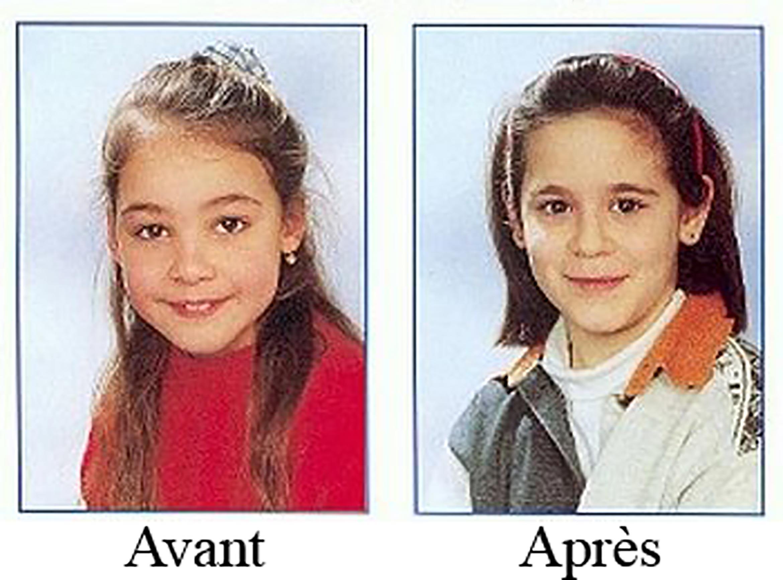 thierry-jaspart-avant-apres
